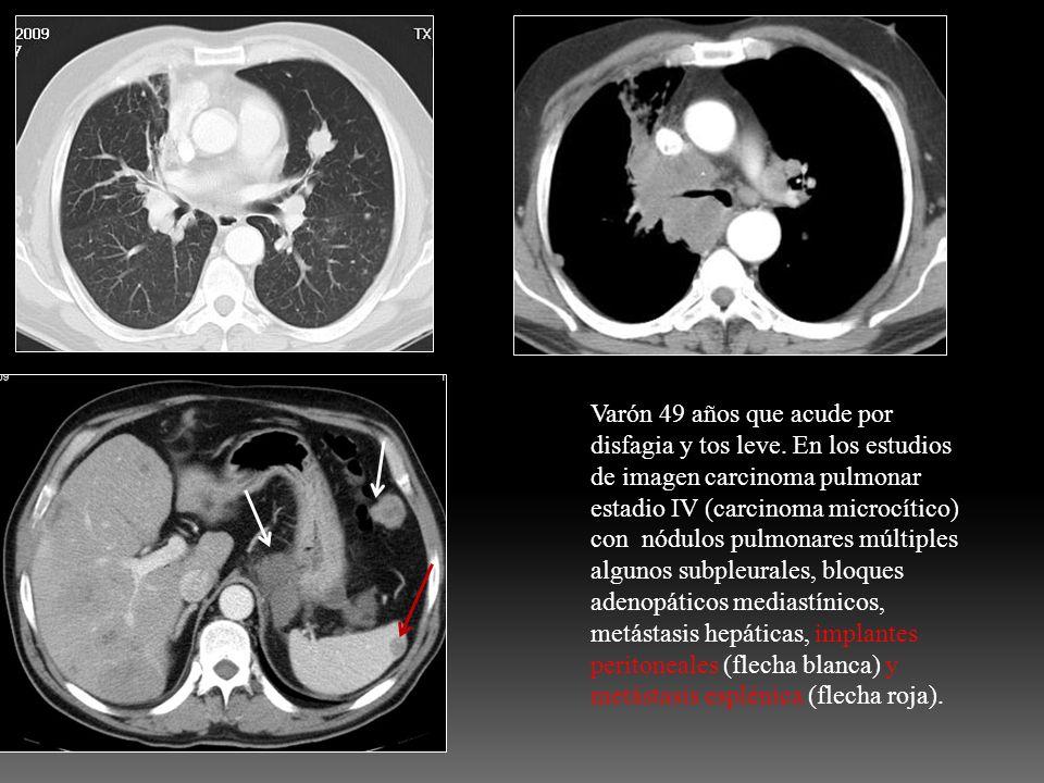 Varón 49 años que acude por disfagia y tos leve. En los estudios de imagen carcinoma pulmonar estadio IV (carcinoma microcítico) con nódulos pulmonare