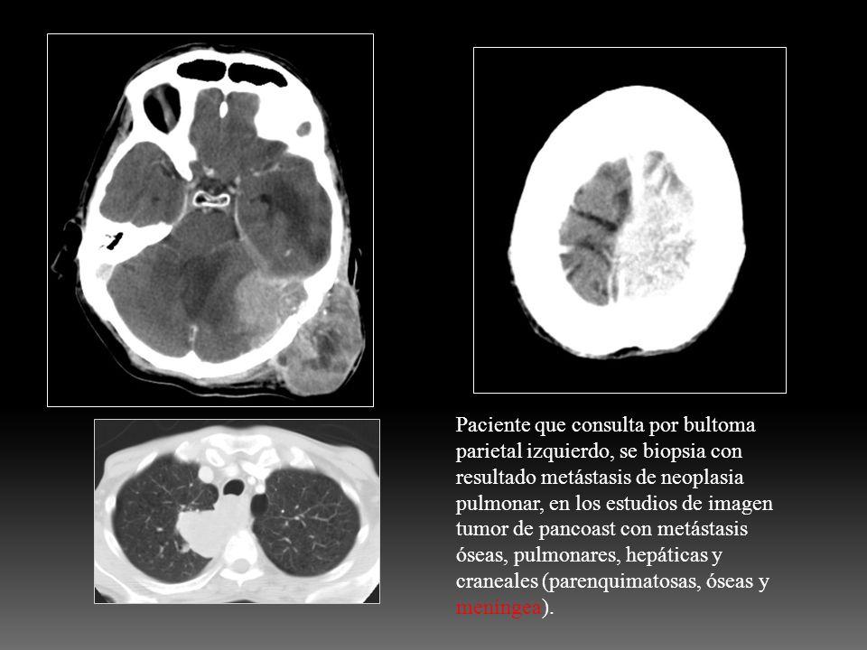 Paciente que consulta por bultoma parietal izquierdo, se biopsia con resultado metástasis de neoplasia pulmonar, en los estudios de imagen tumor de pa