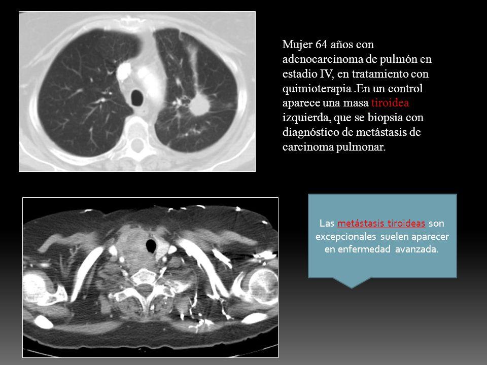 Mujer 64 años con adenocarcinoma de pulmón en estadio IV, en tratamiento con quimioterapia.En un control aparece una masa tiroidea izquierda, que se b