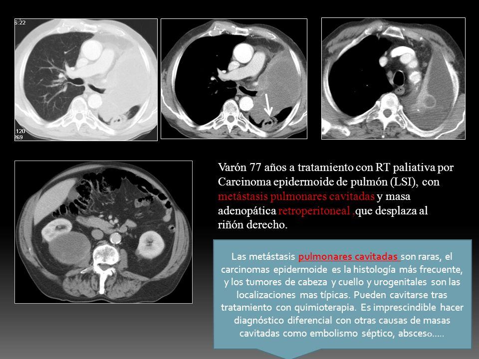 Varón 77 años a tratamiento con RT paliativa por Carcinoma epidermoide de pulmón (LSI), con metástasis pulmonares cavitadas y masa adenopática retrope