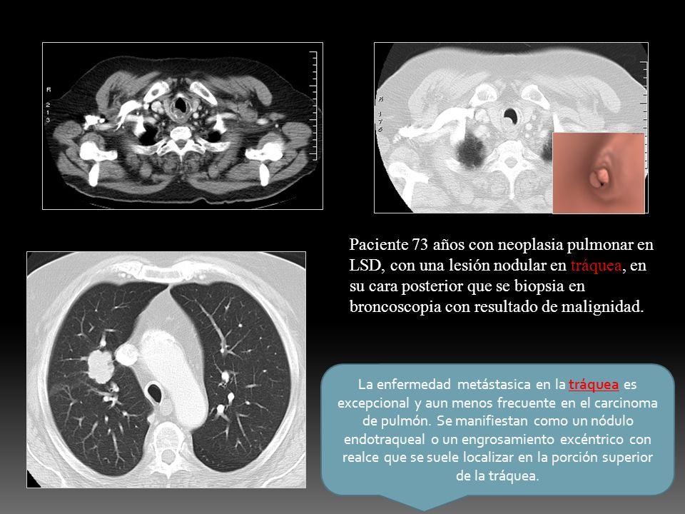 La enfermedad metástasica en la tráquea es excepcional y aun menos frecuente en el carcinoma de pulmón. Se manifiestan como un nódulo endotraqueal o u