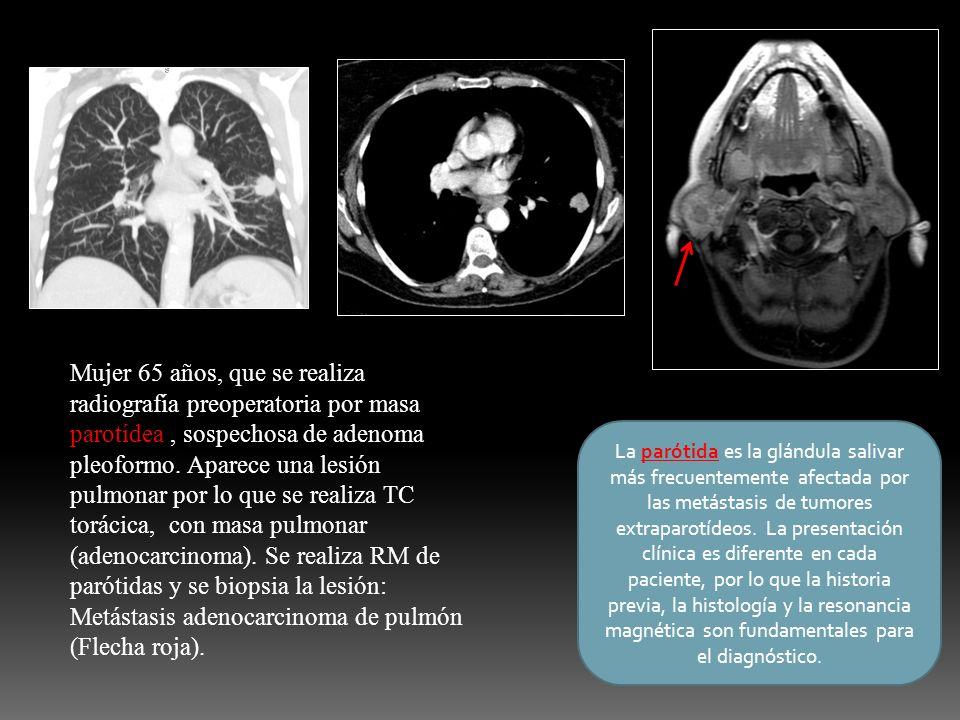 Mujer 65 años, que se realiza radiografía preoperatoria por masa parotídea, sospechosa de adenoma pleoformo. Aparece una lesión pulmonar por lo que se