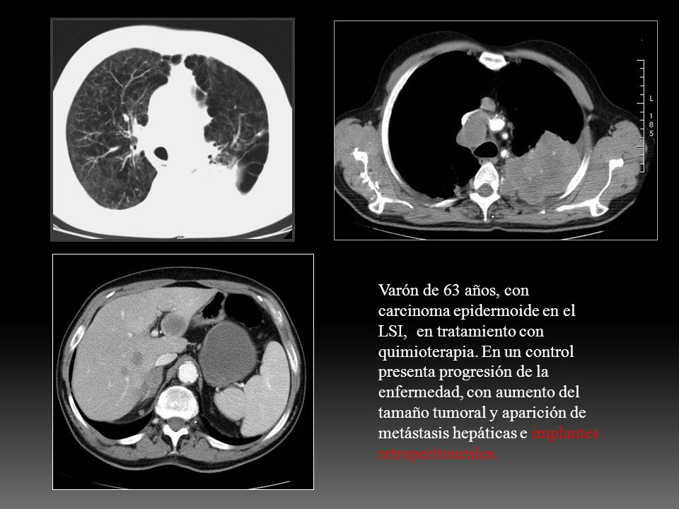 Varón de 63 años, con carcinoma epidermoide en el LSI, en tratamiento con quimioterapia. En un control presenta progresión de la enfermedad, con aumen