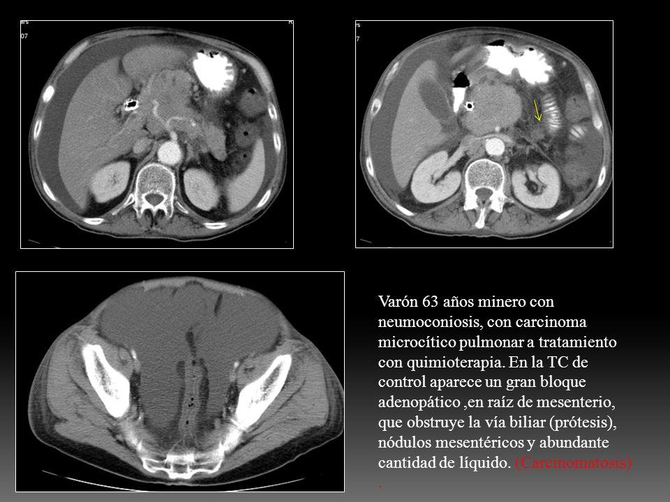 Varón 63 años minero con neumoconiosis, con carcinoma microcítico pulmonar a tratamiento con quimioterapia. En la TC de control aparece un gran bloque