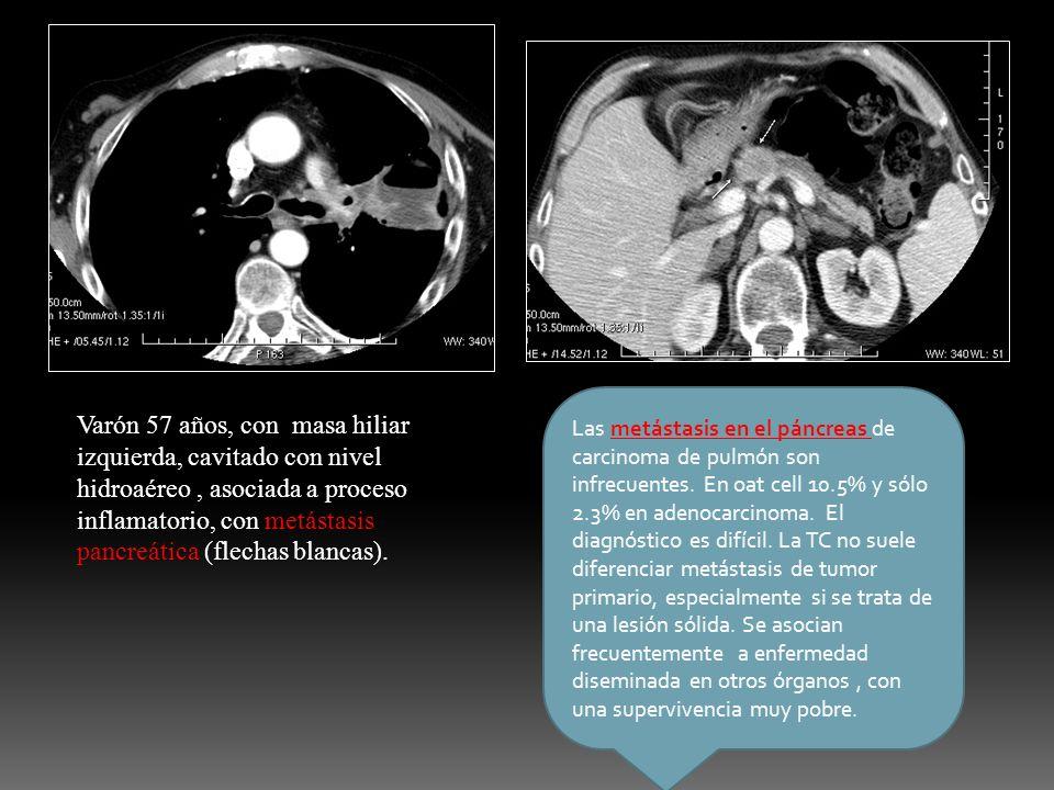 Varón 57 años, con masa hiliar izquierda, cavitado con nivel hidroaéreo, asociada a proceso inflamatorio, con metástasis pancreática (flechas blancas)