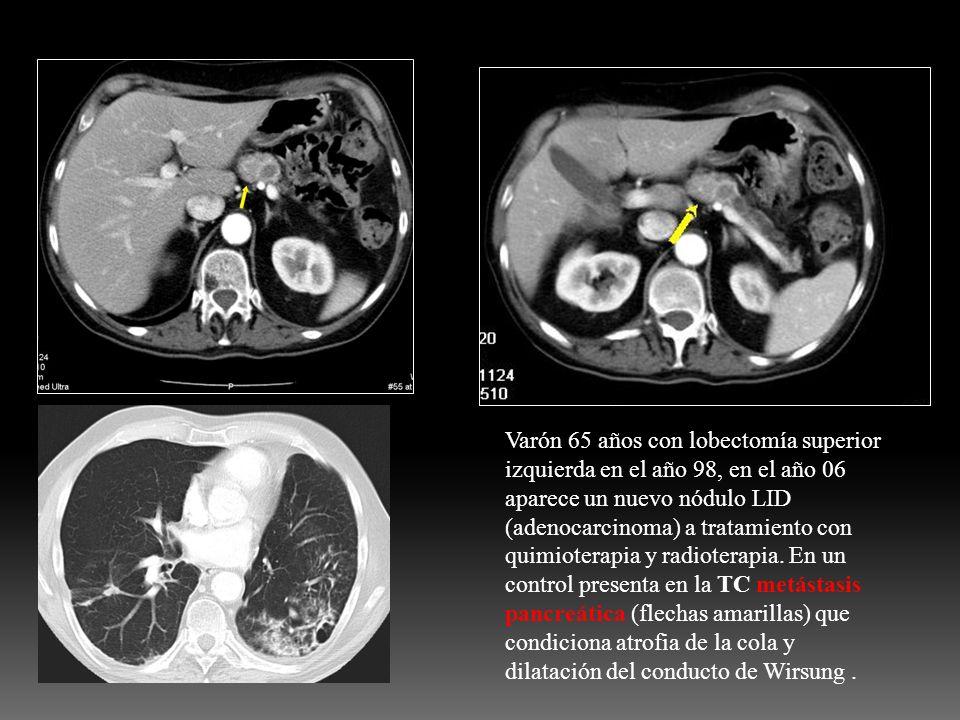 Varón 65 años con lobectomía superior izquierda en el año 98, en el año 06 aparece un nuevo nódulo LID (adenocarcinoma) a tratamiento con quimioterapi