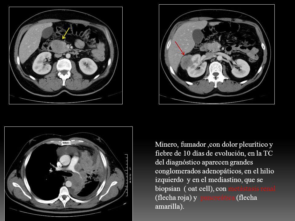 Minero, fumador,con dolor pleurítico y fiebre de 10 días de evolución, en la TC del diagnóstico aparecen grandes conglomerados adenopáticos, en el hil
