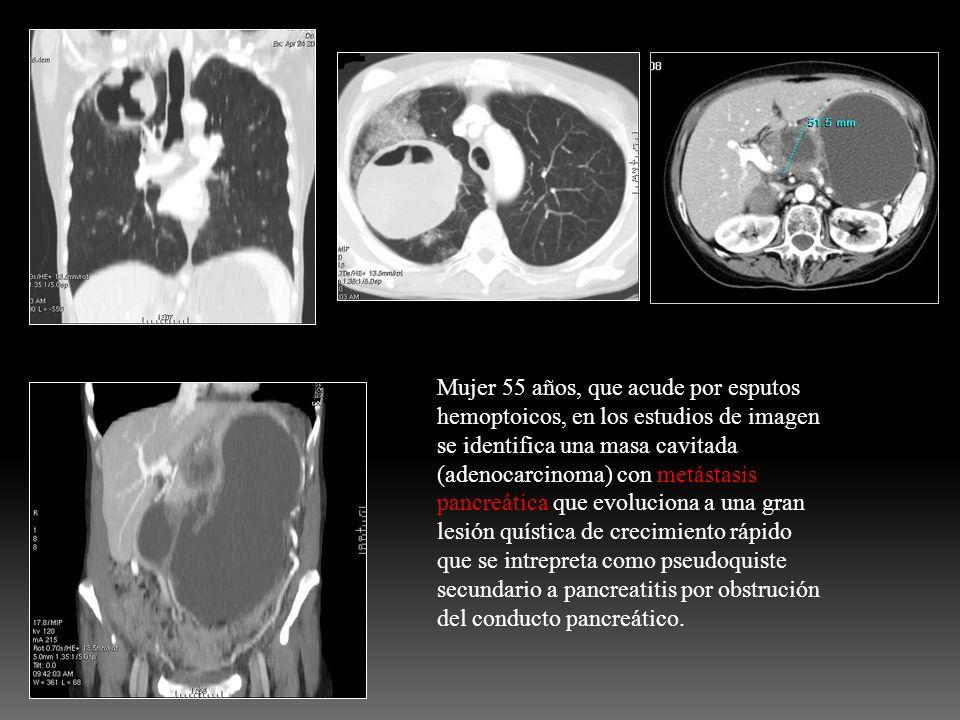 Mujer 55 años, que acude por esputos hemoptoicos, en los estudios de imagen se identifica una masa cavitada (adenocarcinoma) con metástasis pancreátic