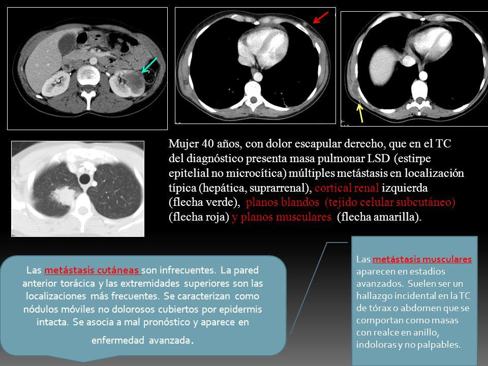 Mujer 40 años, con dolor escapular derecho, que en el TC del diagnóstico presenta masa pulmonar LSD (estirpe epitelial no microcítica) múltiples metás