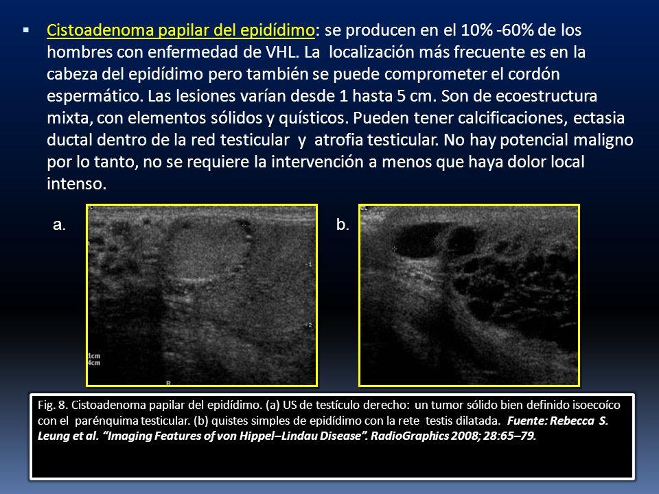 Cistoadenoma papilar del epidídimo: se producen en el 10% -60% de los hombres con enfermedad de VHL. La localización más frecuente es en la cabeza del