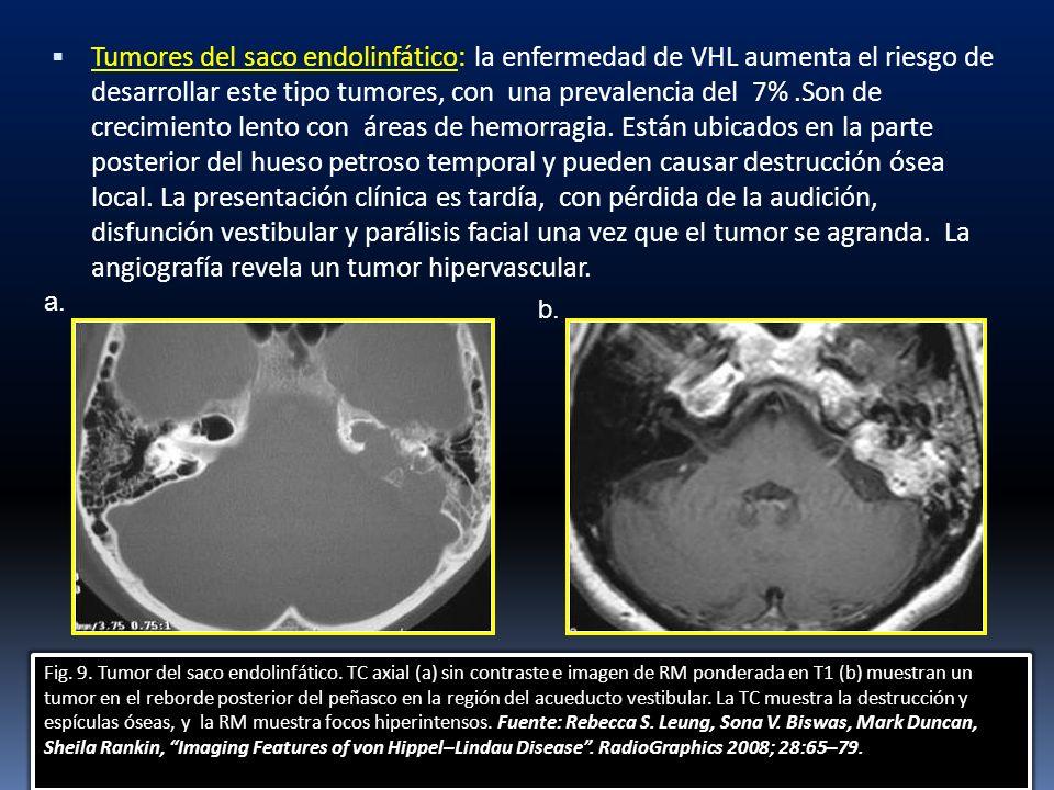 Tumores del saco endolinfático: la enfermedad de VHL aumenta el riesgo de desarrollar este tipo tumores, con una prevalencia del 7%.Son de crecimiento