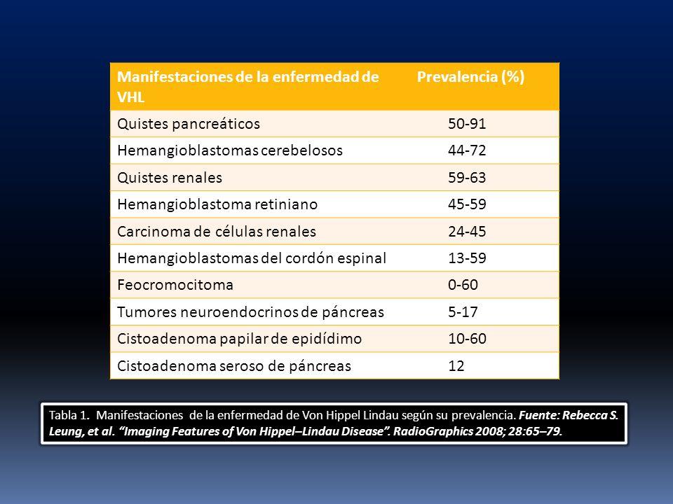 Manifestaciones de la enfermedad de VHL Prevalencia (%) Quistes pancreáticos 50-91 Hemangioblastomas cerebelosos 44-72 Quistes renales 59-63 Hemangiob