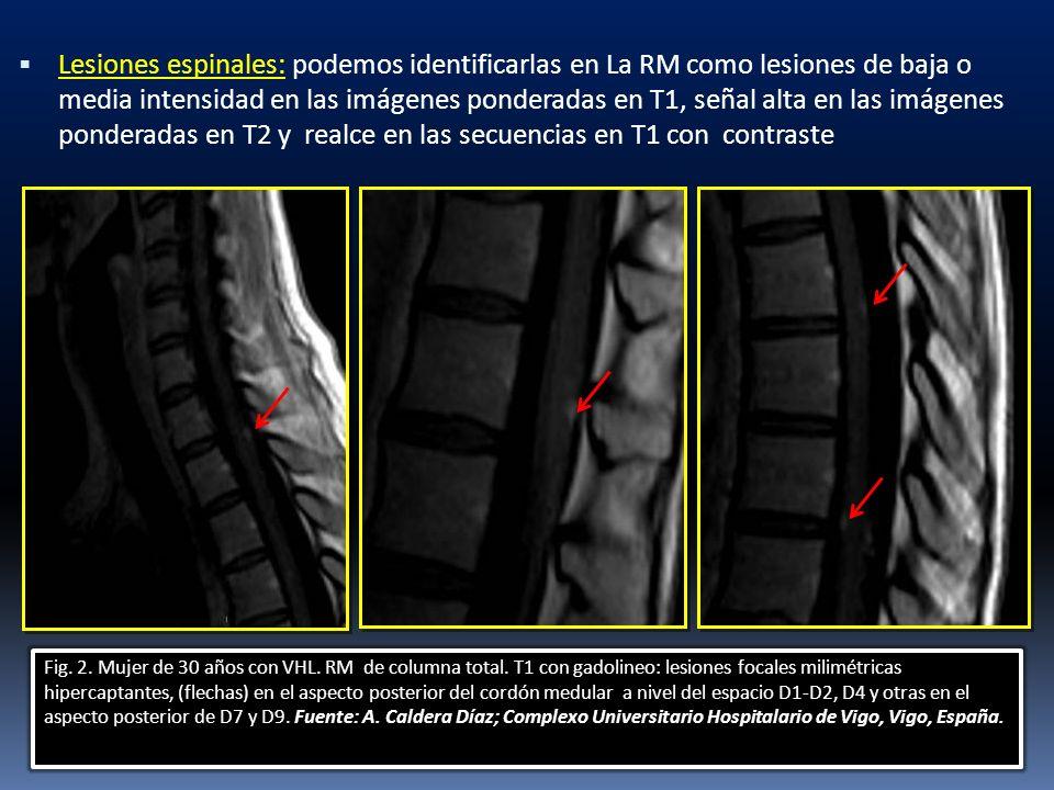 Lesiones espinales: podemos identificarlas en La RM como lesiones de baja o media intensidad en las imágenes ponderadas en T1, señal alta en las imáge