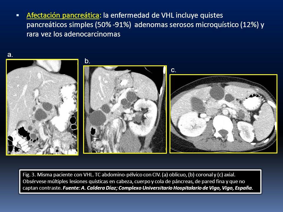 Afectación pancreática: la enfermedad de VHL incluye quistes pancreáticos simples (50% -91%) adenomas serosos microquístico (12%) y rara vez los adeno