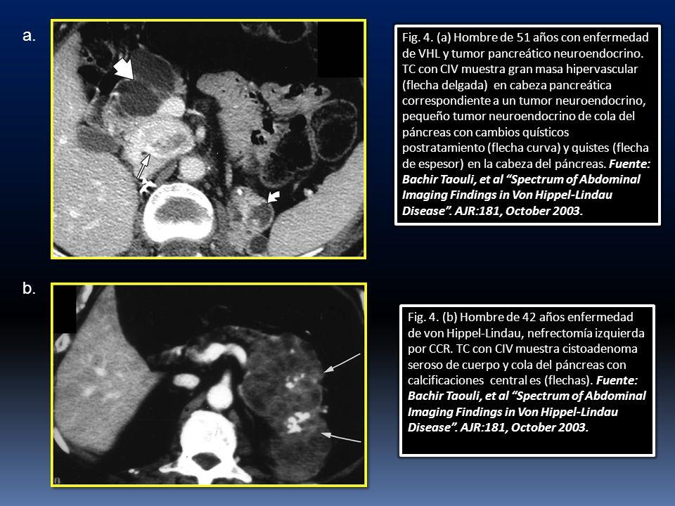 Fig. 4. (b) Hombre de 42 años enfermedad de von Hippel-Lindau, nefrectomía izquierda por CCR. TC con CIV muestra cistoadenoma seroso de cuerpo y cola