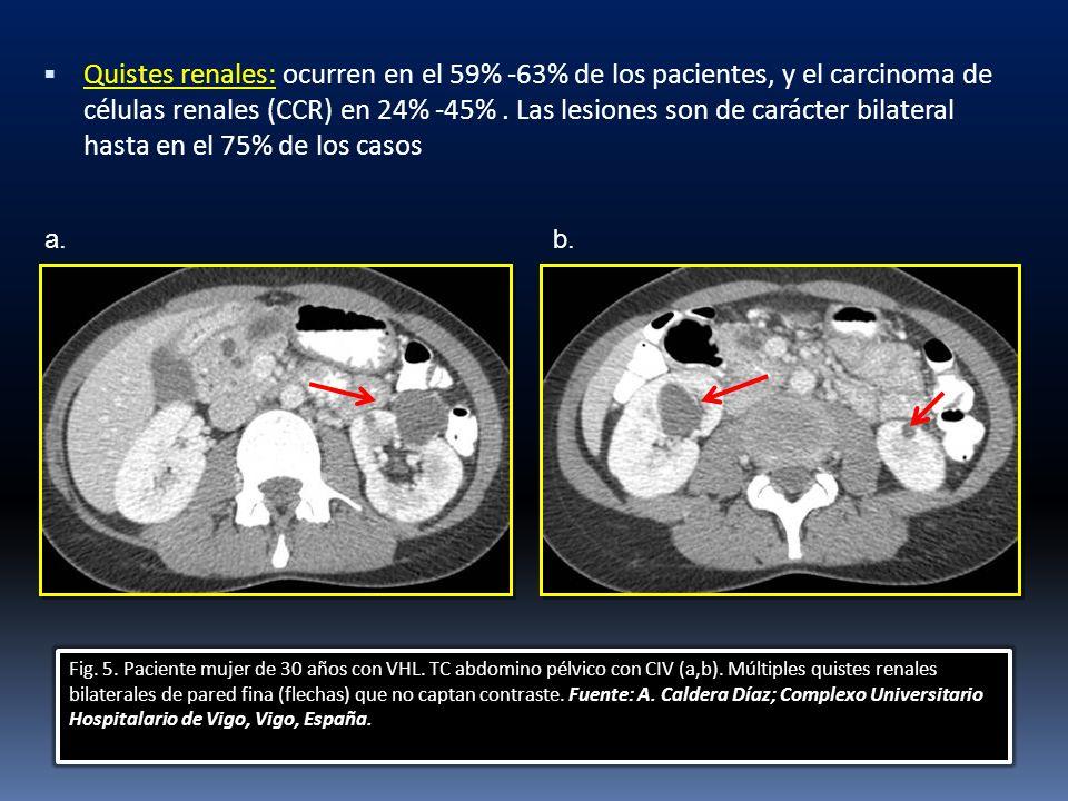 Quistes renales: ocurren en el 59% -63% de los pacientes, y el carcinoma de células renales (CCR) en 24% -45%. Las lesiones son de carácter bilateral