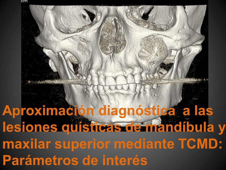 Aproximación diagnóstica a las lesiones quísticas de mandíbula y maxilar superior mediante TCMD: Parámetros de interés
