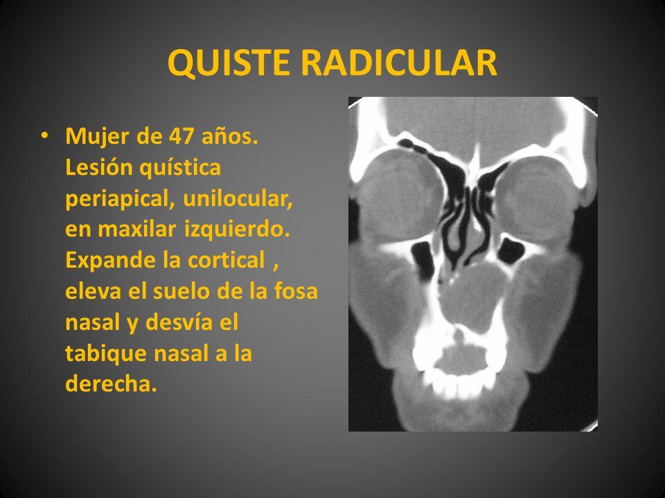 QUISTE RADICULAR Mujer de 47 años. Lesión quística periapical, unilocular, en maxilar izquierdo. Expande la cortical, eleva el suelo de la fosa nasal