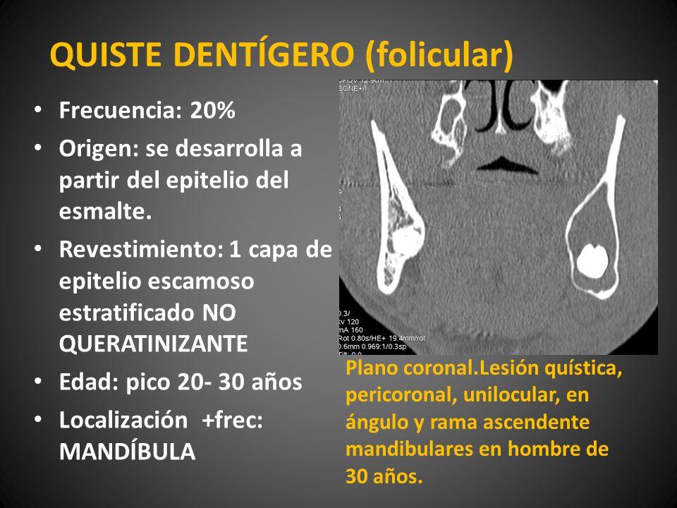 QUISTE DENTÍGERO (folicular) Frecuencia: 20% Origen: se desarrolla a partir del epitelio del esmalte. Revestimiento: 1 capa de epitelio escamoso estra