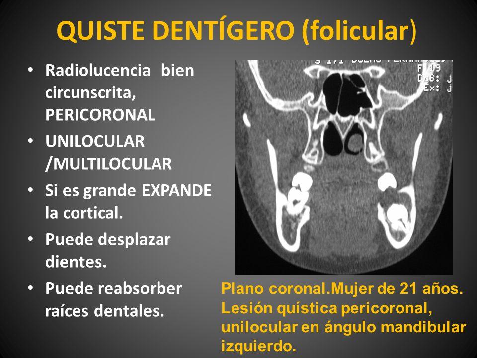 QUISTE DENTÍGERO (folicular) Radiolucencia bien circunscrita, PERICORONAL UNILOCULAR /MULTILOCULAR Si es grande EXPANDE la cortical. Puede desplazar d