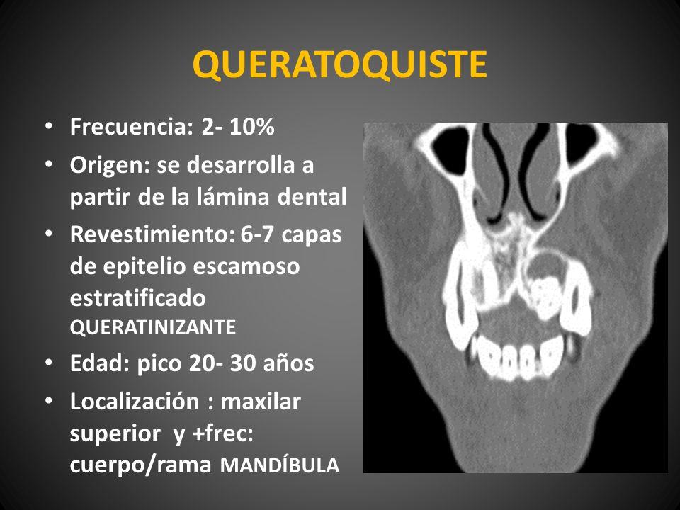QUERATOQUISTE Frecuencia: 2- 10% Origen: se desarrolla a partir de la lámina dental Revestimiento: 6-7 capas de epitelio escamoso estratificado QUERAT