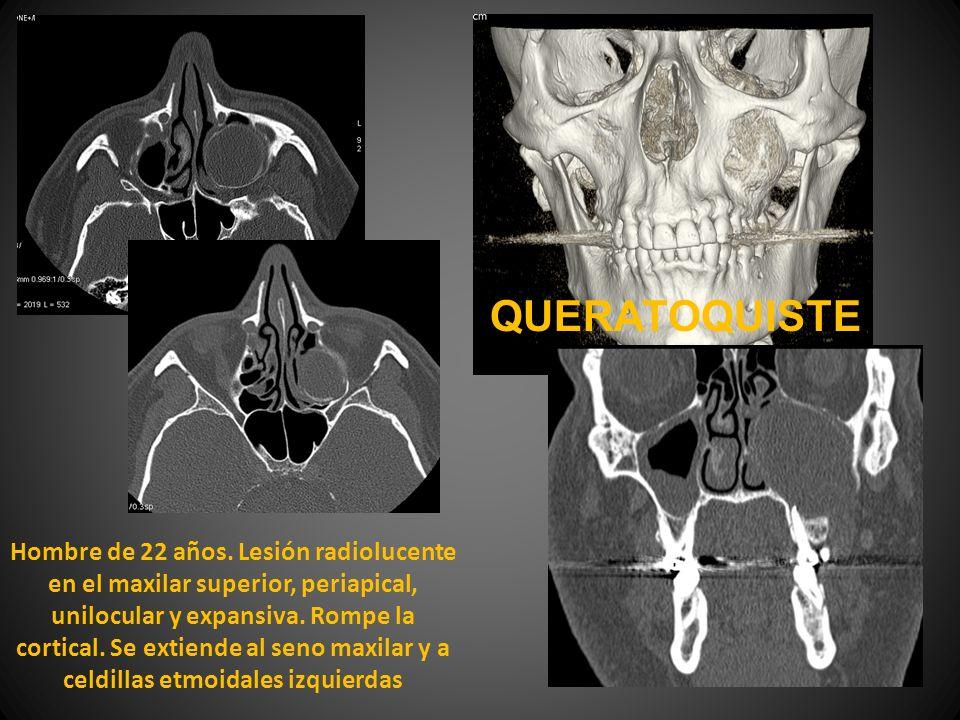 Hombre de 22 años. Lesión radiolucente en el maxilar superior, periapical, unilocular y expansiva. Rompe la cortical. Se extiende al seno maxilar y a