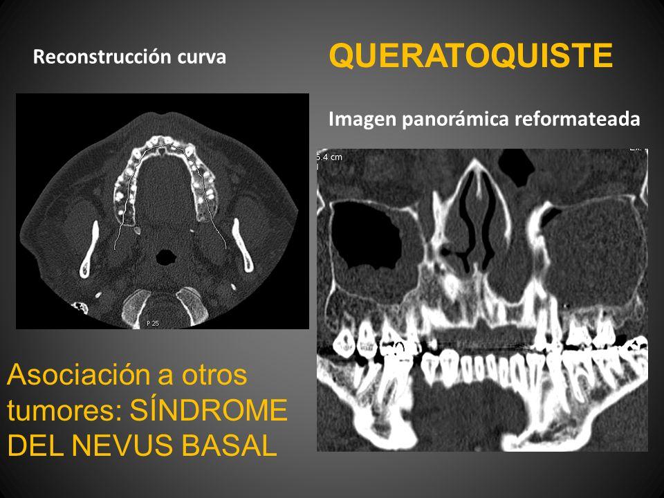 Reconstrucción curva Imagen panorámica reformateada QUERATOQUISTE Asociación a otros tumores: SÍNDROME DEL NEVUS BASAL