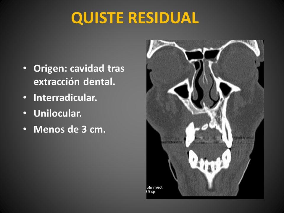 QUISTE RESIDUAL Origen: cavidad tras extracción dental. Interradicular. Unilocular. Menos de 3 cm.