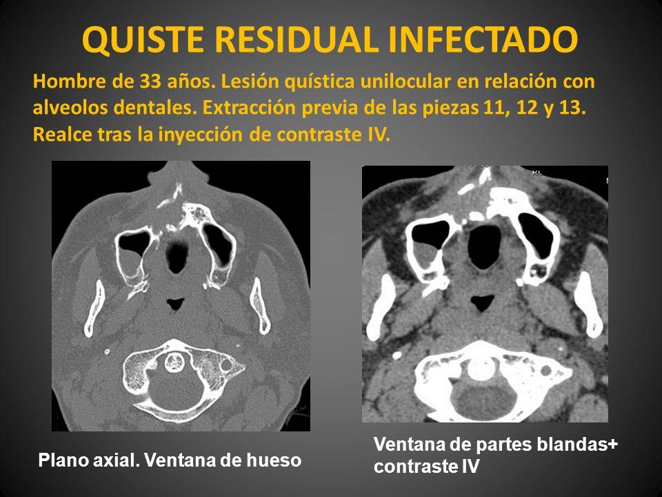 QUISTE RESIDUAL INFECTADO Hombre de 33 años. Lesión quística unilocular en relación con alveolos dentales. Extracción previa de las piezas 11, 12 y 13
