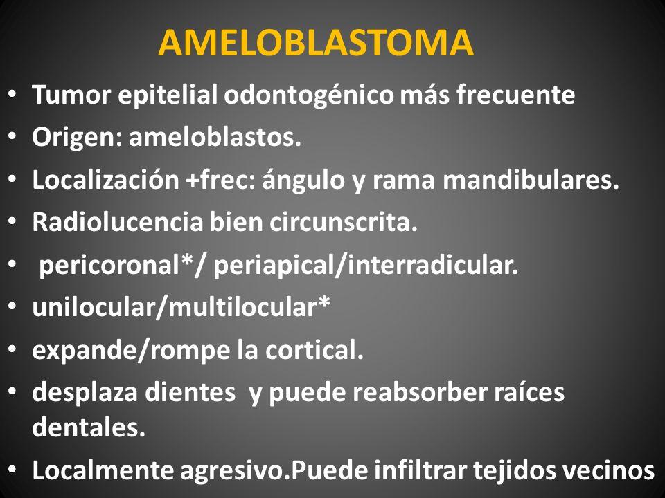 AMELOBLASTOMA Tumor epitelial odontogénico más frecuente Origen: ameloblastos. Localización +frec: ángulo y rama mandibulares. Radiolucencia bien circ