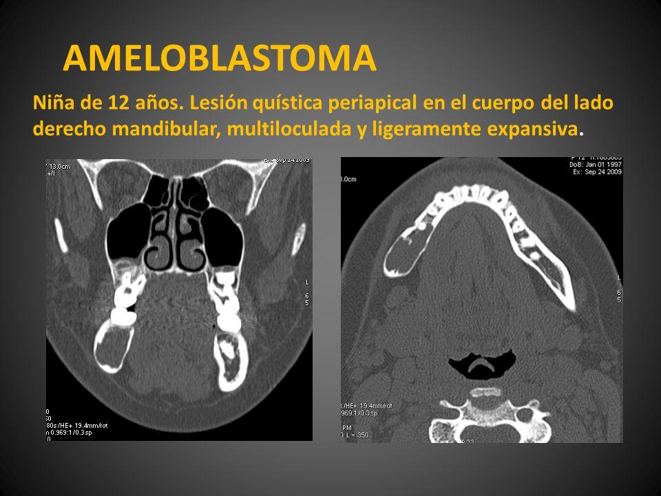 AMELOBLASTOMA Niña de 12 años. Lesión quística periapical en el cuerpo del lado derecho mandibular, multiloculada y ligeramente expansiva.