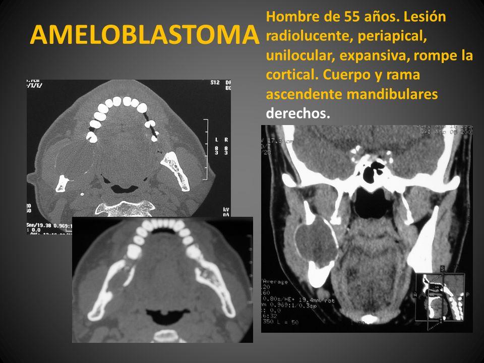 AMELOBLASTOMA Hombre de 55 años. Lesión radiolucente, periapical, unilocular, expansiva, rompe la cortical. Cuerpo y rama ascendente mandibulares dere