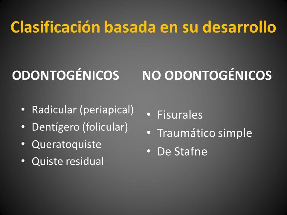 Clasificación basada en su desarrollo ODONTOGÉNICOS Radicular (periapical) Dentígero (folicular) Queratoquiste Quiste residual NO ODONTOGÉNICOS Fisura