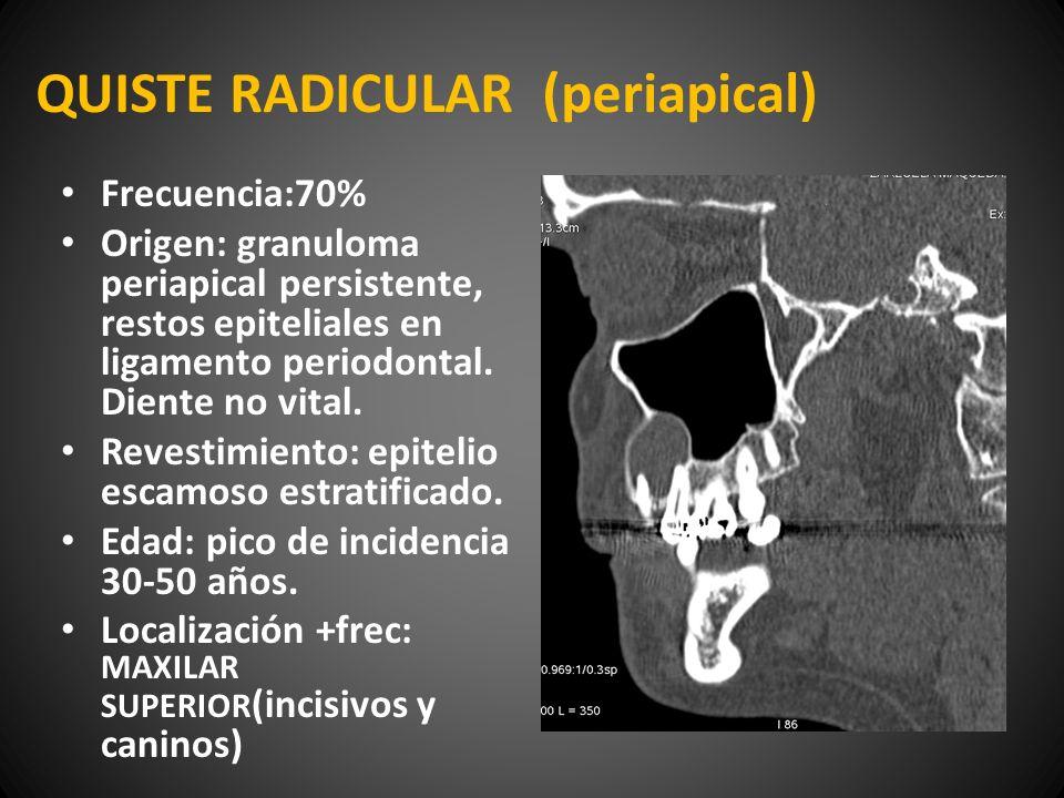 QUISTE RADICULAR (periapical) Frecuencia:70% Origen: granuloma periapical persistente, restos epiteliales en ligamento periodontal. Diente no vital. R