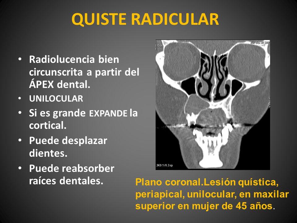 QUISTE RADICULAR Radiolucencia bien circunscrita a partir del ÁPEX dental. UNILOCULAR Si es grande EXPANDE la cortical. Puede desplazar dientes. Puede