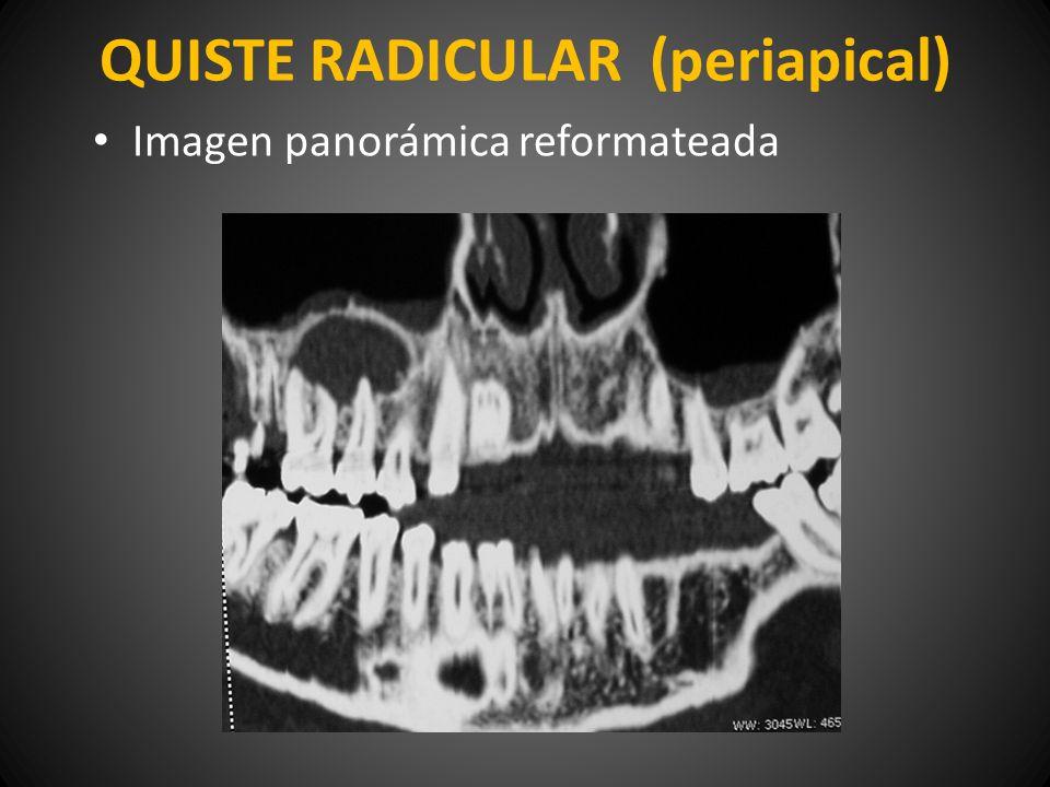 QUISTE RADICULAR (periapical) Imagen panorámica reformateada