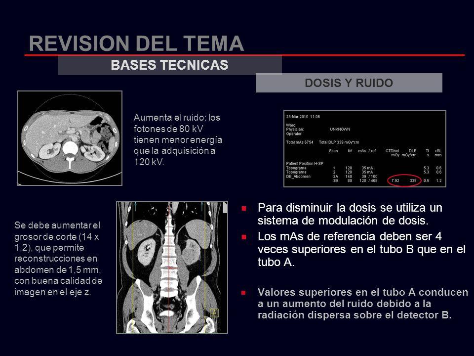 REVISION DEL TEMA Para disminuir la dosis se utiliza un sistema de modulación de dosis. Los mAs de referencia deben ser 4 veces superiores en el tubo
