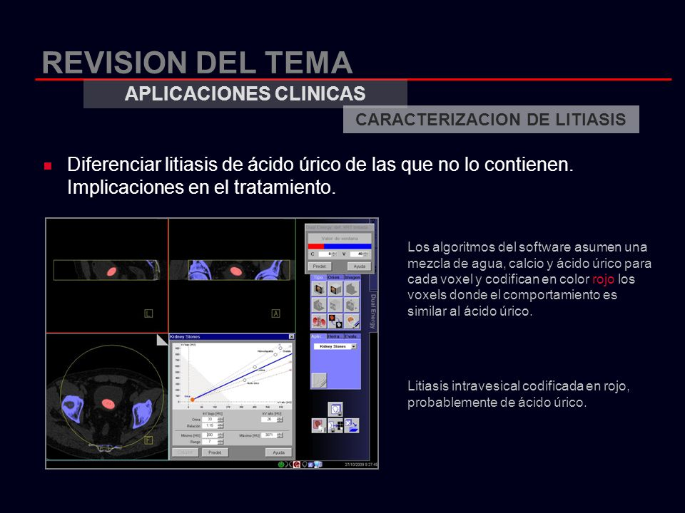 REVISION DEL TEMA Diferenciar litiasis de ácido úrico de las que no lo contienen. Implicaciones en el tratamiento. APLICACIONES CLINICAS CARACTERIZACI