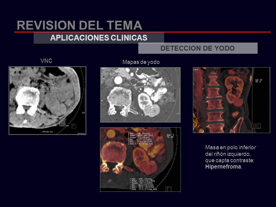 REVISION DEL TEMA APLICACIONES CLINICAS DETECCION DE YODO Mapas de yodo Masa en polo inferior del riñón izquierdo, que capta contraste: Hipernefroma.