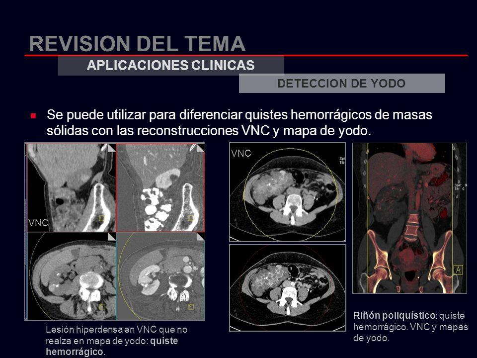 REVISION DEL TEMA Se puede utilizar para diferenciar quistes hemorrágicos de masas sólidas con las reconstrucciones VNC y mapa de yodo. APLICACIONES C