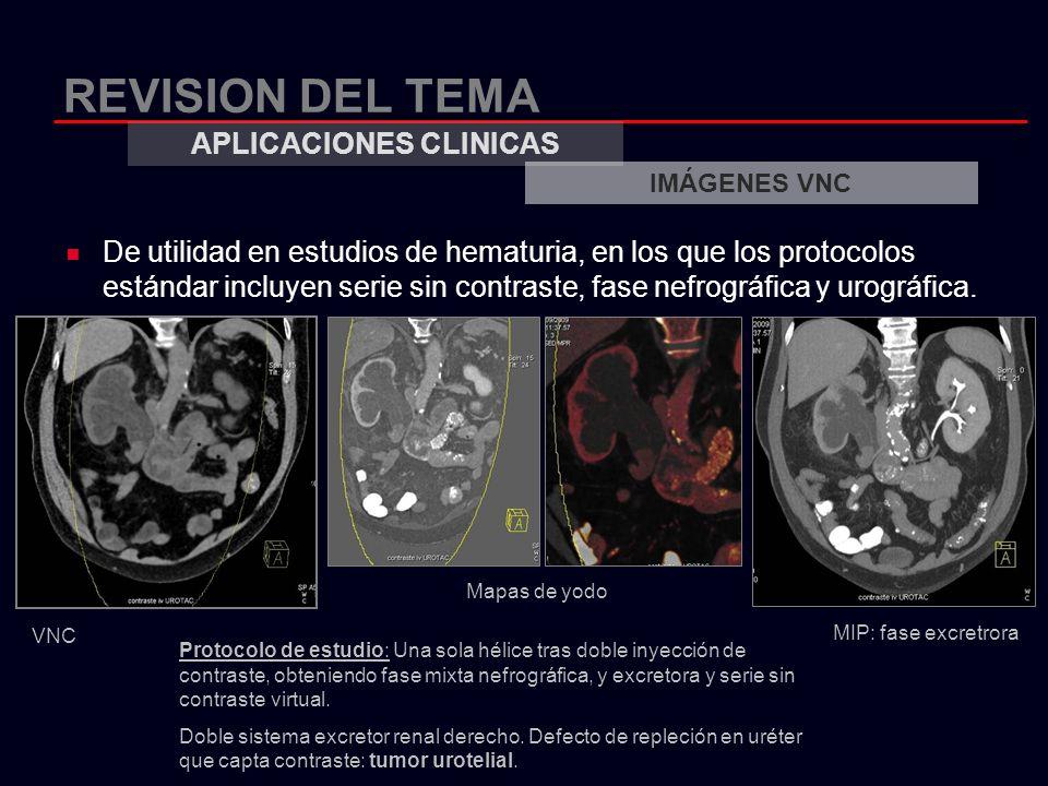 REVISION DEL TEMA De utilidad en estudios de hematuria, en los que los protocolos estándar incluyen serie sin contraste, fase nefrográfica y urográfic