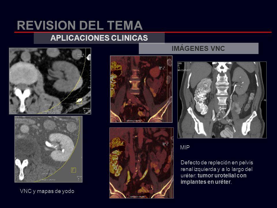 REVISION DEL TEMA APLICACIONES CLINICAS IMÁGENES VNC VNC y mapas de yodo Defecto de repleción en pelvis renal izquierda y a lo largo del uréter: tumor