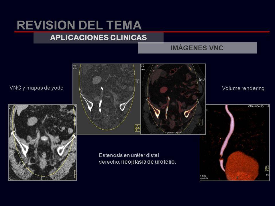 REVISION DEL TEMA APLICACIONES CLINICAS IMÁGENES VNC VNC y mapas de yodo Volume rendering Estenosis en uréter distal derecho: neoplasia de urotelio.