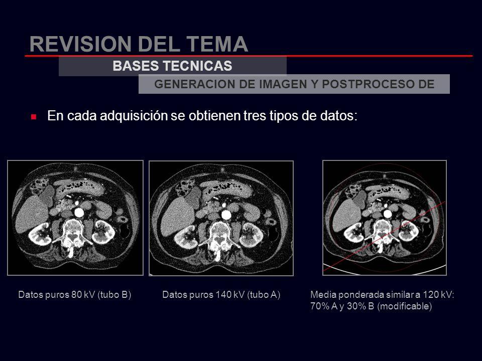 REVISION DEL TEMA En cada adquisición se obtienen tres tipos de datos: BASES TECNICAS GENERACION DE IMAGEN Y POSTPROCESO DE Datos puros 80 kV (tubo B)