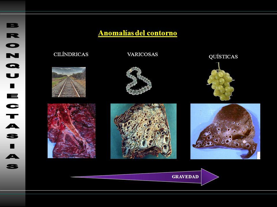 HISTIOCITOSIS X Quistes de morfología irregular Respeta ángulos costofrénicos Nódulos 1-5 mm cavitación Lóbulos sup LINFANGIOLEIO.