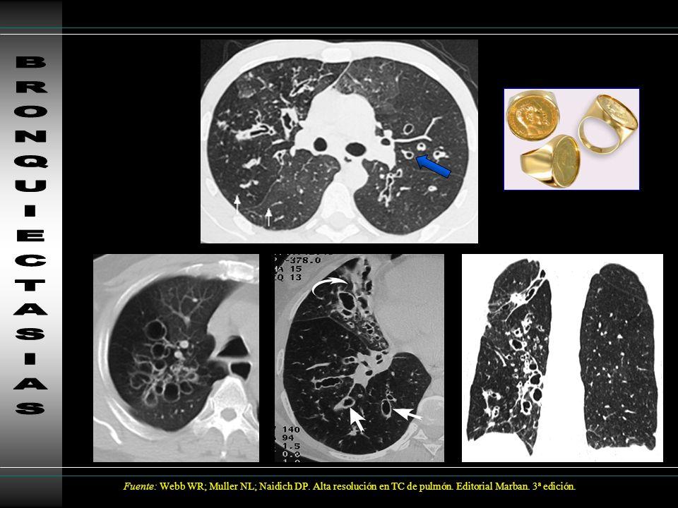 Histiocitosis X Enfermedad sistémica de etiología desconocida Jóvenes/mediana edad 90% antecedentes de tabaquismo Mejor pronóstico aislado que enfermedad de sistema múltiple Evolución: Formación de granulomas (acúmulo cel.