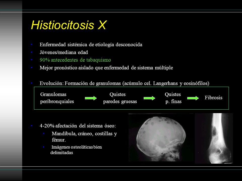 Hallazgos radiológicos: Quistes (<10 mm) Bilaterales, predominan en lóbulo superior Paredes de distinto grosor Formas redondas, bilobuladas, trébol Respetan ángulos costofrénicos Nódulos pequeños Márgenes irregulares Centros brillantes Originan cavidades y dilataciones bronquiales +/- Ganglios +/- lesiones líticas