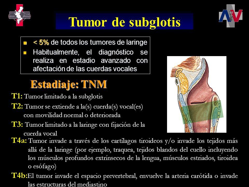 T1: Tumor limitado a la subglotis T2: Tumor se extiende a la(s) cuerda(s) vocal(es) con movilidad normal o deteriorada T3: Tumor limitado a la laringe