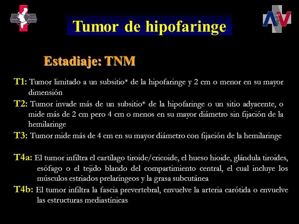 T1: Tumor limitado a un subsitio* de la hipofaringe y 2 cm o menor en su mayor dimensión T2: Tumor invade más de un subsitio* de la hipofaringe o un s