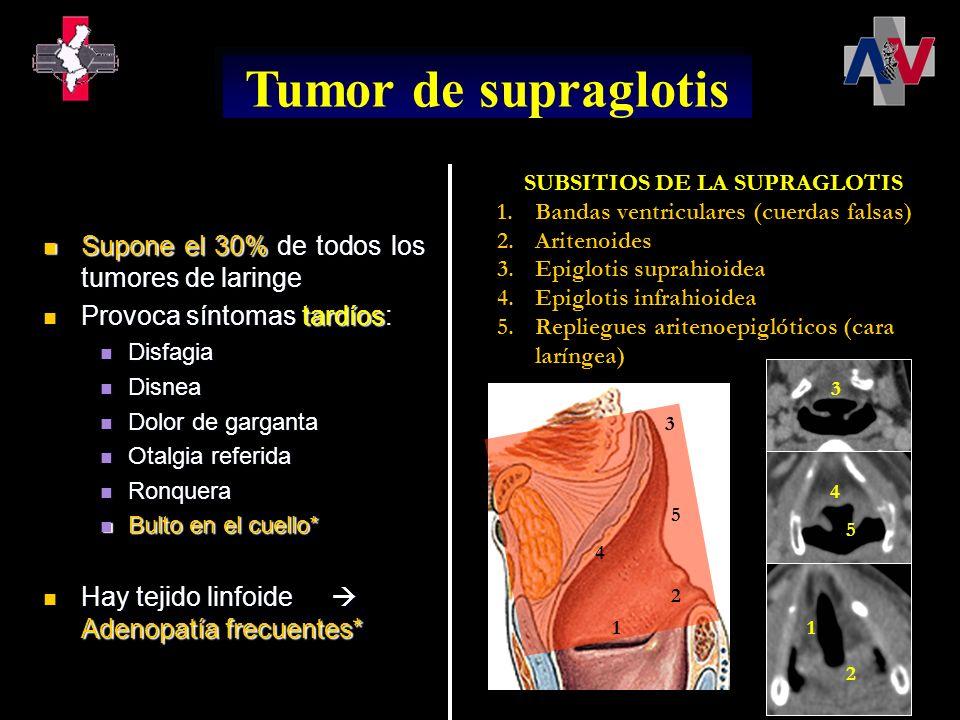T1: Tumor limitado a un subsitio de la supraglotis con movilidad normal de las cuerdas vocales T2: Tumor invade la mucosa o más de un subsitio adyacente de la supraglotis o glotis, o región fuera de la supraglotis (por ejemplo, la mucosa de la base de la lengua, vallécula o pared media del seno piriforme) sin fijación de la laringe T3: Tumor limitado a la laringe con fijación de la cuerda vocal o invade área postcricoidea, pared medial del seno piriforme o tejidos pre-epiglóticos, espacio paraglótico o erosión menor del cartílago tiroideo (por ejemplo, corteza interior) Tumor de supraglotis Estadiaje: TNM T4a: Tumor invade a través de los cartílagos tiroideos y/o invade los tejidos más allá de la laringe (por ejemplo, traquea, tejidos blandos del cuello incluyendo los músculos profundos extrínsecos de la lengua, músculos estriados, tiroidea o esófago) T4b: El tumor invade el espacio prevertebral, envuelve la arteria carótida o invade las estructuras del mediastino
